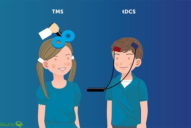 تفاوت tDCS و TMSبا 30% تخفیف زیر نظر دکتر با بیش از 15 سال سابقه